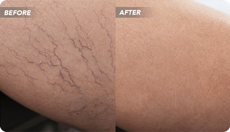 Are you wondering what happens during varicose vein treatment in River Oaks? In this article, our vein doctors provide a detailed description of the best varicose vein treatments.