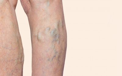 Introducing Dr. Calvin Jung, Talented Varicose Vein Doc in TX