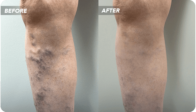 Who's the Most Reputable Varicose Vein Doctor in Texas?