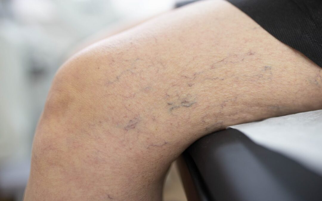 Who is the Most Reputable Vein Doc Near Me in Texas?